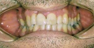sette krone på en tann