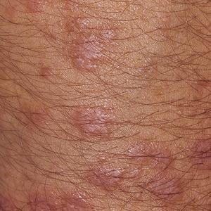 Subakutt kutan lupus erythematosus