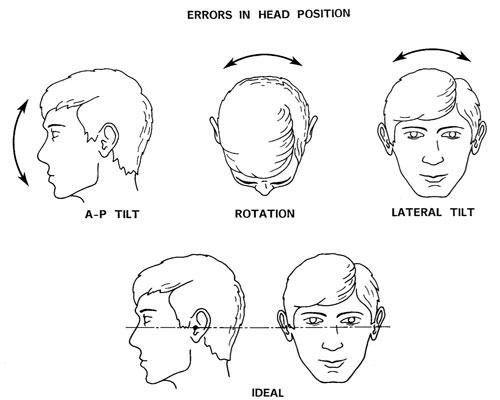 males i ansigtet som kranie