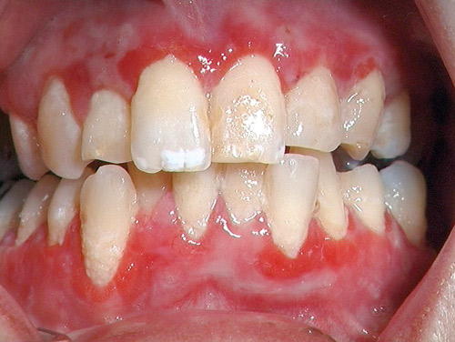Slemhinneförändringar i munnen