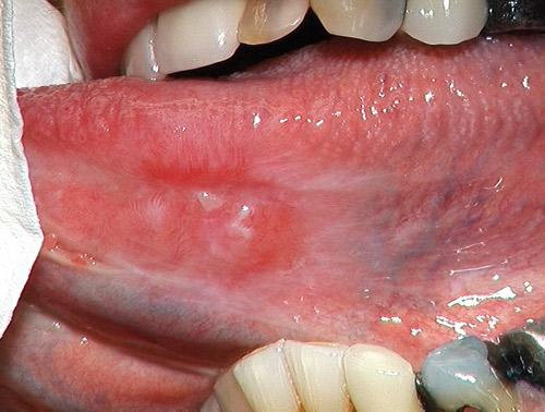 Lichen i munnen behandling