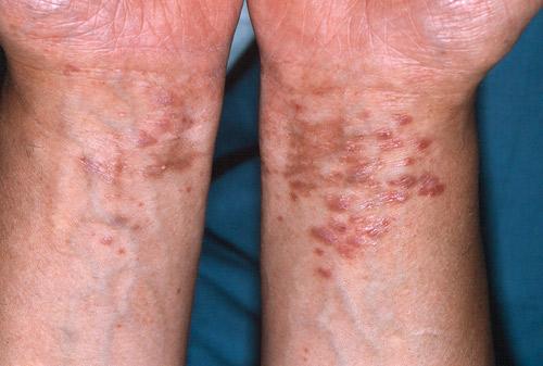 lichen ruber planus naglar