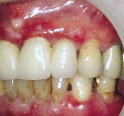 lichen planus i munnen
