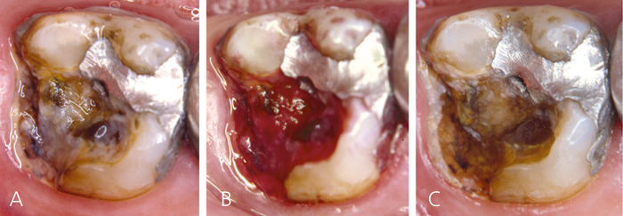 Acute dental pain I: pulpal and dentinal pain - Den norske ...