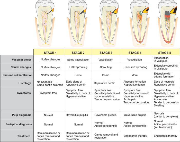 Acute Dental Pain I Pulpal And Dentinal Pain Den Norske