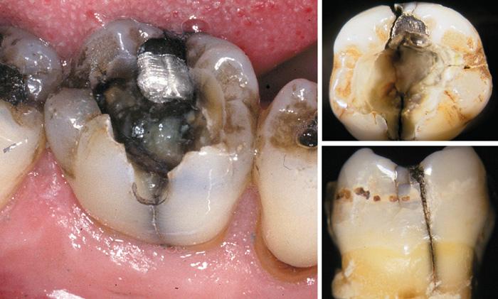 Acute dental pain II: pulpal and periapical pain - Den