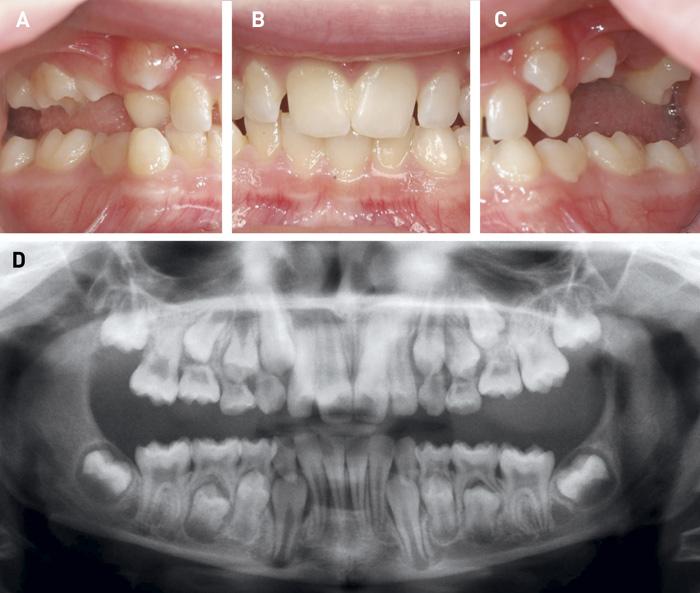 tænder og sygdomme