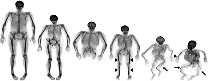 et skelet over kroppens knogler