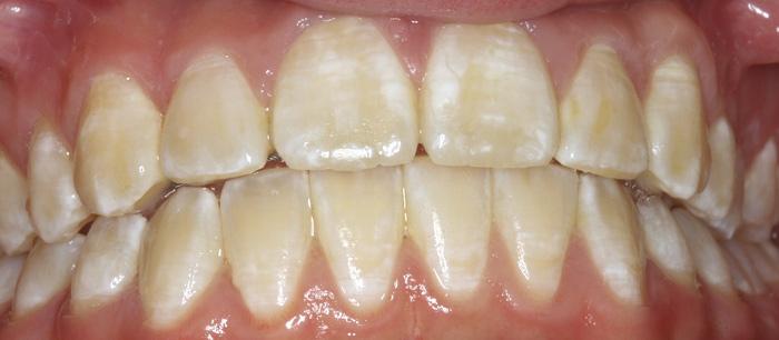 hvite flekker på tennene barn